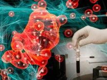 Лечение рака: до чего дошла наука