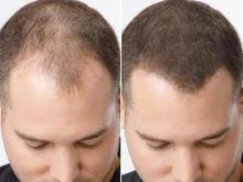 Когда волосы нужно спасти: лечение миноксидилом