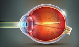 Близорукость (миопия): особенности заболевания