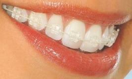 Зубы в сапфирах: выбираем брекеты